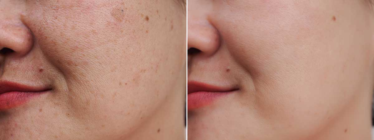 cosmelan przebarwienia skóry